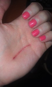 Butter knife wound.  At least my nails were painted.